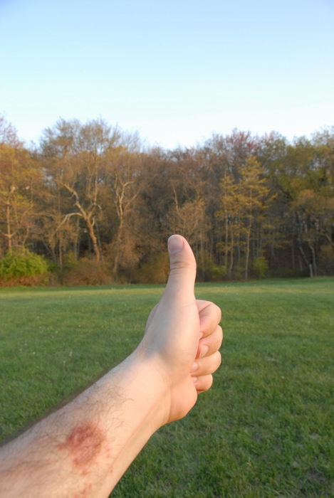 Thumbs across America, field, poison ivy, rash, trees